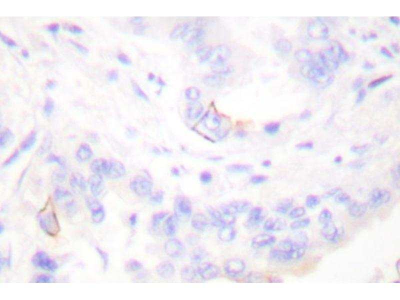 image for anti-Crk antibody (V-Crk Sarcoma Virus CT10 Oncogene Homolog (Avian)) (ABIN265373)