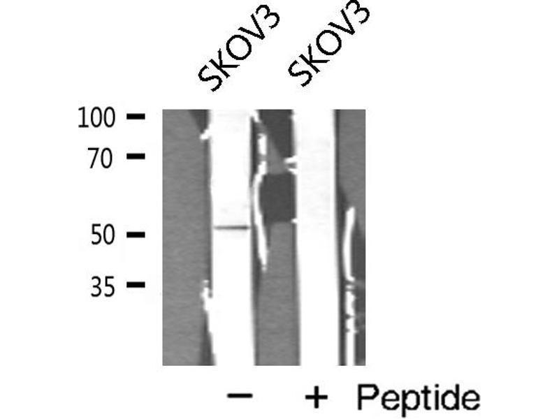 Western Blotting (WB) image for anti-Cyclin A1 (CCNA1) antibody (ABIN6261140)
