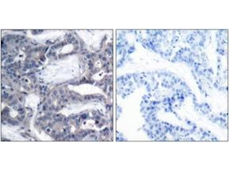 Immunohistochemistry (IHC) image for anti-MAP2K2 antibody (Mitogen-Activated Protein Kinase Kinase 2) (pThr394) (ABIN1531905)