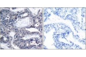Immunohistochemistry (IHC) image for anti-Mitogen-Activated Protein Kinase Kinase 2 (MAP2K2) (AA 261-310) antibody (ABIN1531905)