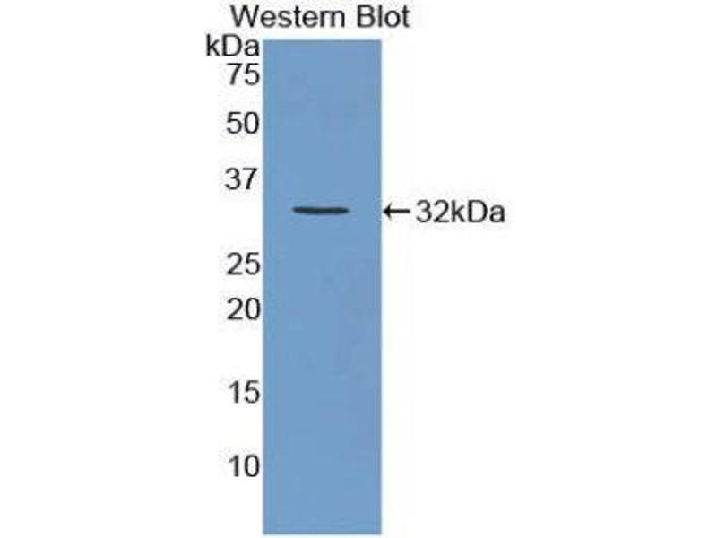 Western Blotting (WB) image for anti-Versican (Vcan) (AA 3058-3299) antibody (ABIN1860936)