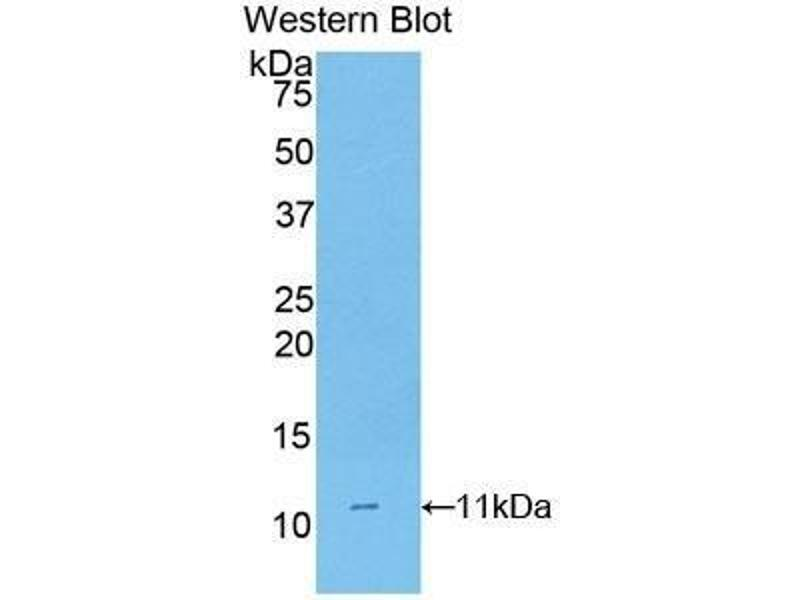 Western Blotting (WB) image for anti-CD3d Molecule, delta (CD3-TCR Complex) (CD3D) (AA 22-106) antibody (ABIN1175145)