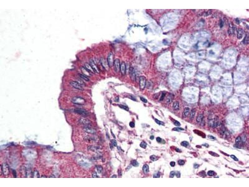 Immunohistochemistry (IHC) image for anti-Wingless-Type MMTV Integration Site Family, Member 9A (WNT9A) (Internal Region) antibody (ABIN1049487)
