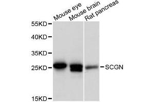 Image no. 1 for anti-Secretagogin, EF-Hand Calcium Binding Protein (SCGN) antibody (ABIN6147431)