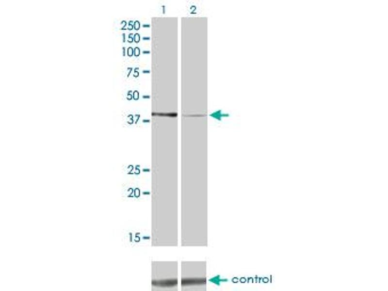 Western Blotting (WB) image for anti-Pyruvate Dehydrogenase Kinase, Isozyme 2 (PDK2) (AA 187-276), (partial) antibody (ABIN562160)