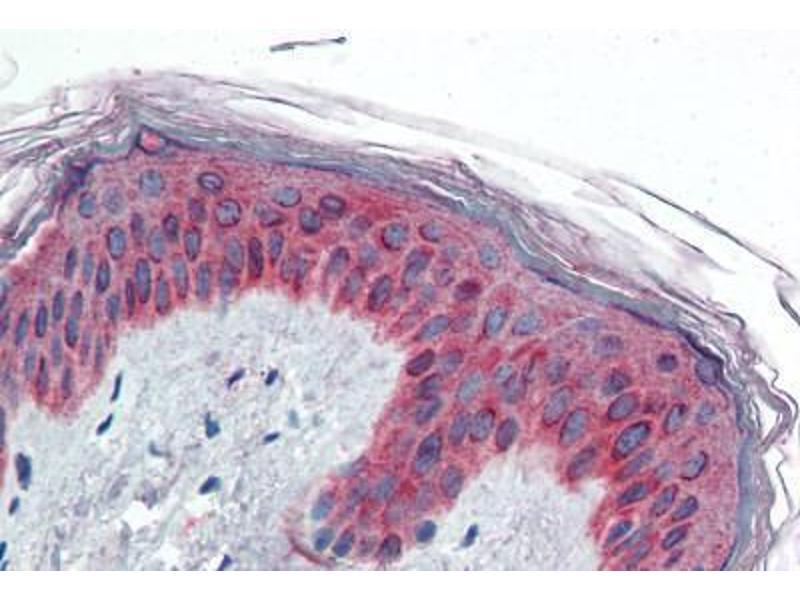 Immunohistochemistry (Paraffin-embedded Sections) (IHC (p)) image for anti-Vav 3 Oncogene (VAV3) (AA 567-578) antibody (ABIN461931)