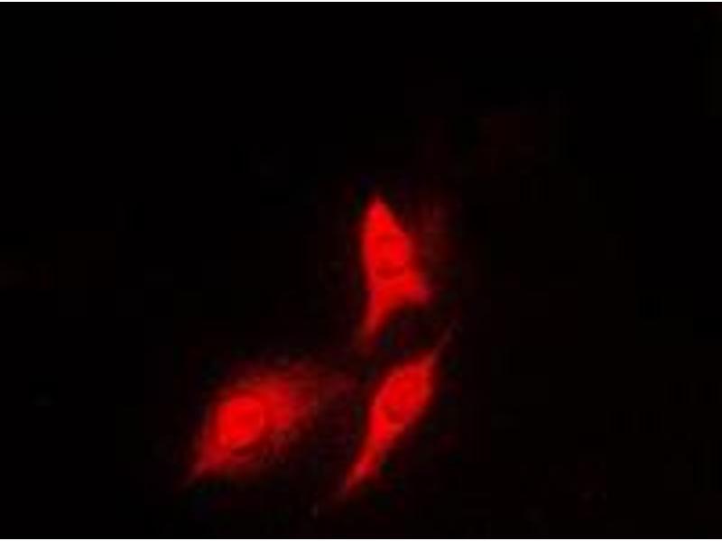 Immunofluorescence (IF) image for anti-Ribosomal Protein S6 Kinase, 70kDa, Polypeptide 1 (RPS6KB1) (C-Term) antibody (ABIN2705217)