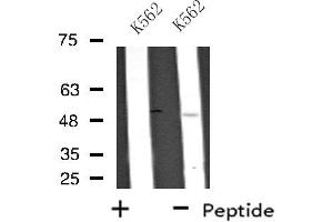 Image no. 1 for anti-Ubiquitin Family Domain Containing 1 (UBFD1) antibody (ABIN6259354)