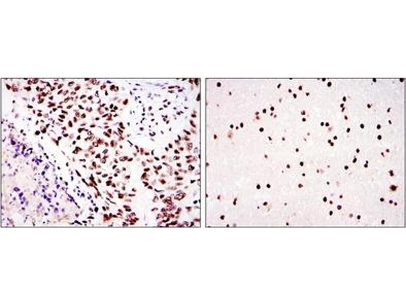 Immunohistochemistry (IHC) image for anti-Protein Kinase, DNA-Activated, Catalytic Polypeptide (PRKDC) antibody (ABIN1107001)