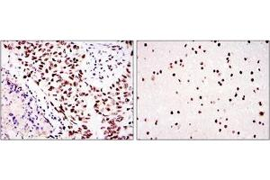 anti-Protein Kinase, DNA-Activated, Catalytic Polypeptide (PRKDC) antibody (3)