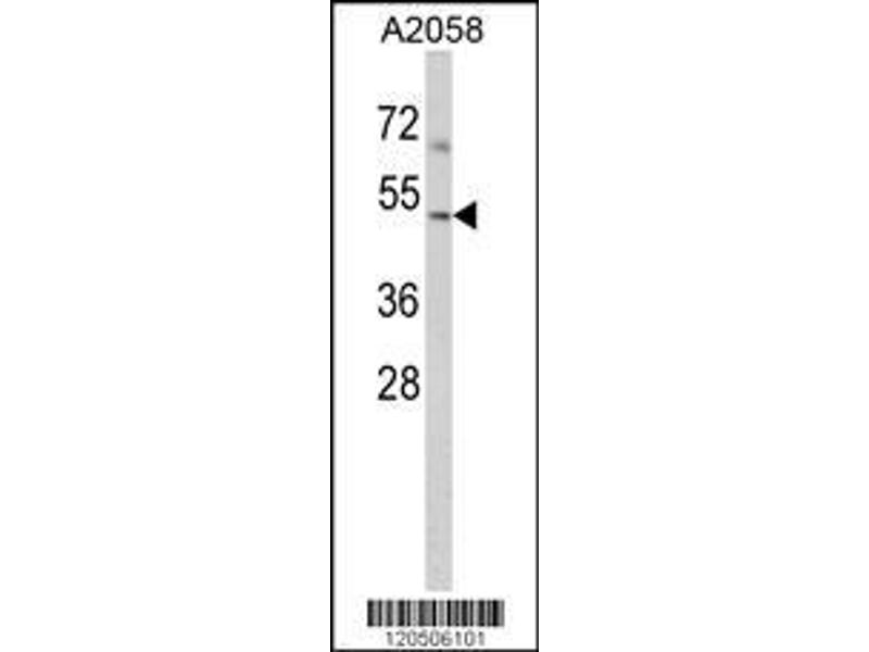 Western Blotting (WB) image for anti-ARP3 Actin-Related Protein 3 Homolog (Yeast) (ACTR3) (AA 380-407), (C-Term) antibody (ABIN389423)