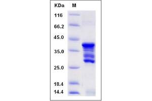 Image no. 1 for CD247 Molecule (CD247) (AA 52-164), (Mature) protein (GST tag) (ABIN2005483)
