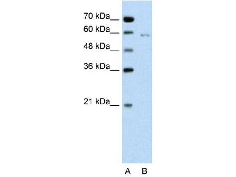 Western Blotting (WB) image for anti-Cell Division Cycle 23 Homolog (S. Cerevisiae) (CDC23) (C-Term) antibody (ABIN310418)