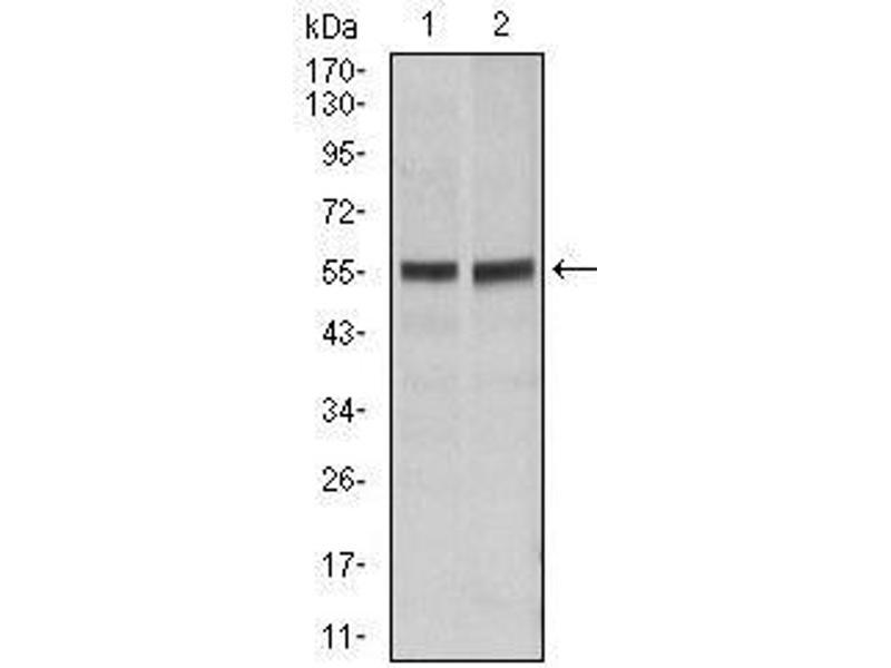 Western Blotting (WB) image for anti-Fas (TNF Receptor Superfamily, Member 6) (FAS) antibody (ABIN4880717)