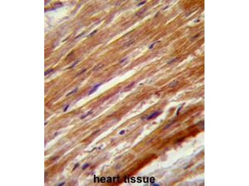 Immunohistochemistry (Paraffin-embedded Sections) (IHC (p)) image for anti-MAP3K4 antibody (Mitogen-Activated Protein Kinase Kinase Kinase 4) (AA 1065-1097) (ABIN953298)