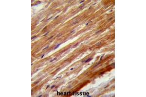 Immunohistochemistry (Paraffin-embedded Sections) (IHC (p)) image for anti-Mitogen-Activated Protein Kinase Kinase Kinase 4 (MAP3K4) (AA 1065-1097), (Middle Region) antibody (ABIN953298)