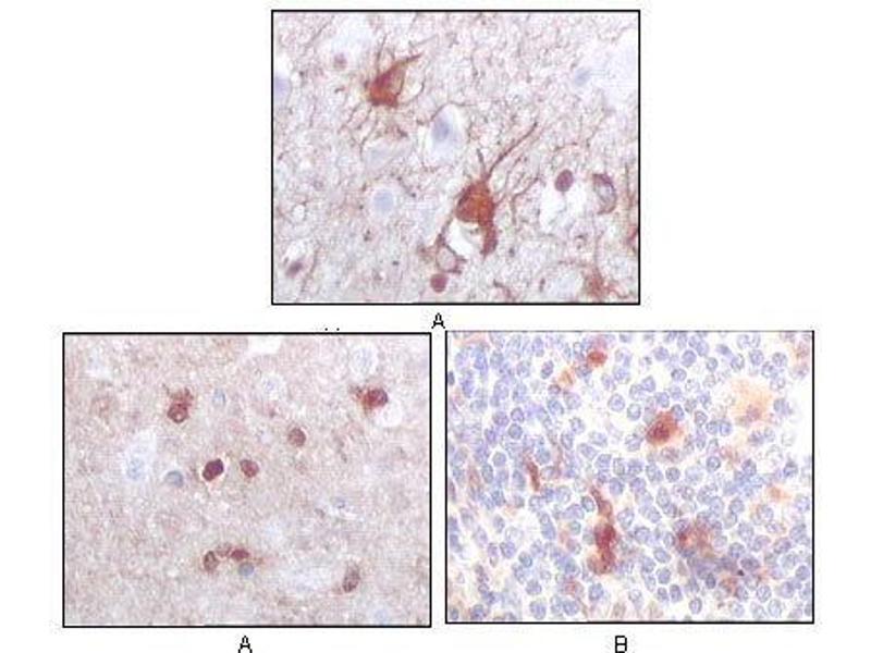 Immunohistochemistry (IHC) image for anti-S100 Calcium Binding Protein B (S100B) antibody (ABIN969391)