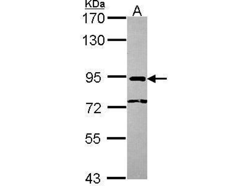 Western Blotting (WB) image for anti-Nuclear Cap Binding Protein Subunit 1, 80kDa (NCBP1) (N-Term) antibody (ABIN2856327)