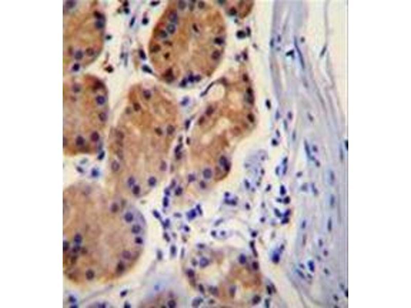 Immunohistochemistry (Paraffin-embedded Sections) (IHC (p)) image for anti-Catenin (Cadherin-Associated Protein), beta 1, 88kDa (CTNNB1) (AA 653-681), (C-Term) antibody (ABIN951058)