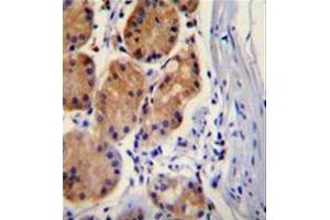 Immunohistochemistry (Paraffin-embedded Sections) (IHC (p)) image for anti-Catenin (Cadherin-Associated Protein), beta 1, 88kDa (CTNNB1) (AA 653-681), (C-Term) antibody (ABIN951058)