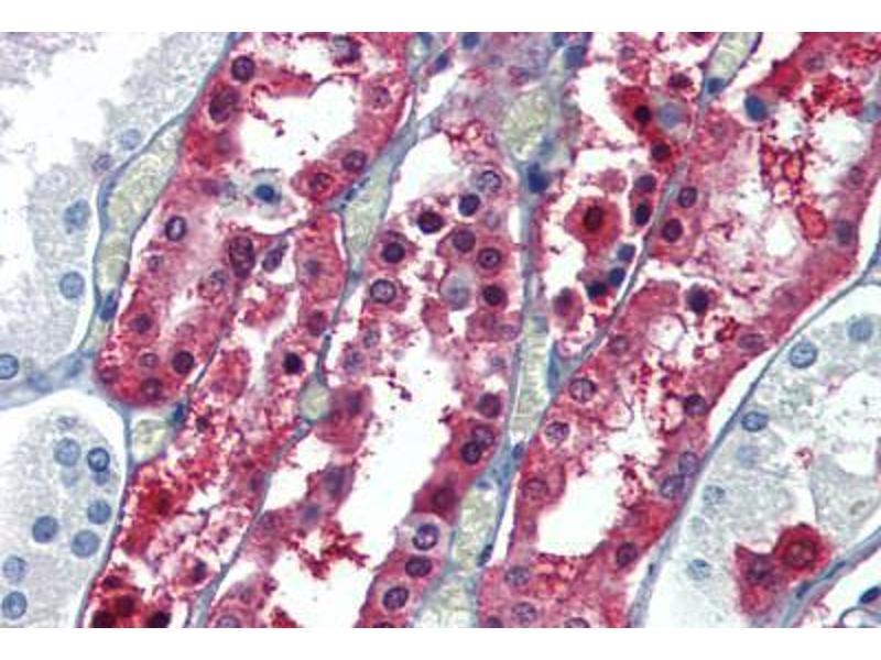 Image no. 2 for anti-Glutathione S-Transferase pi 1 (GSTP1) (Internal Region) antibody (ABIN462486)