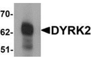 Image no. 1 for anti-Dual-Specificity tyrosine-(Y)-phosphorylation Regulated Kinase 2 (DYRK2) (C-Term) antibody (ABIN783436)