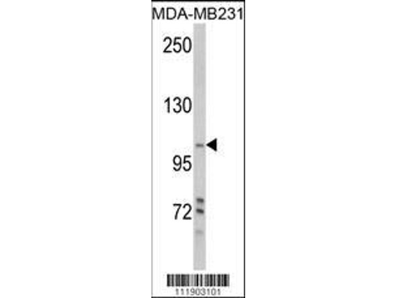 Western Blotting (WB) image for anti-PI3KC3 (AA 405-430), (Ser425) antibody (ABIN388597)