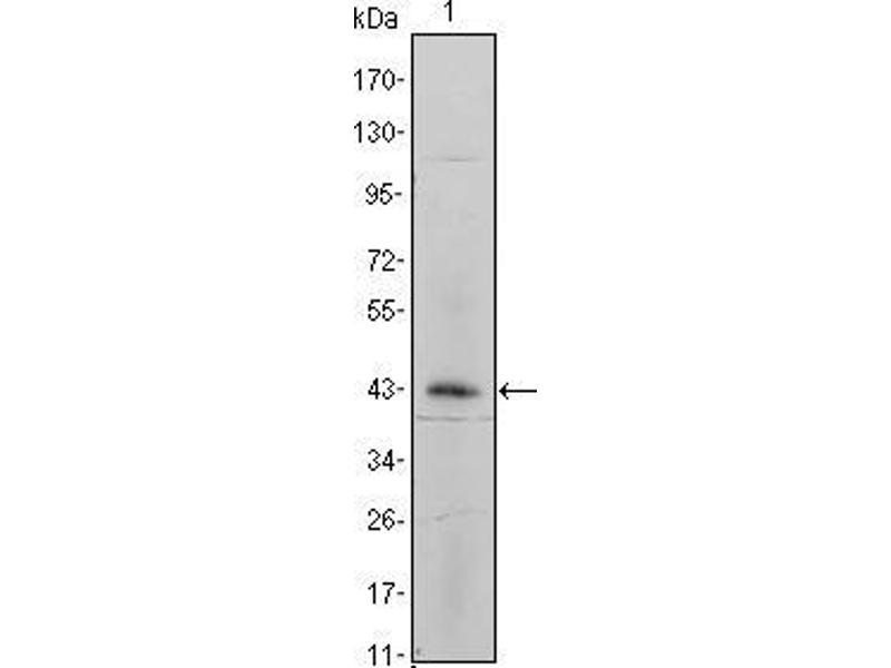 Western Blotting (WB) image for anti-Integrin, alpha 5 (Fibronectin Receptor, alpha Polypeptide) (ITGA5) antibody (ABIN969221)