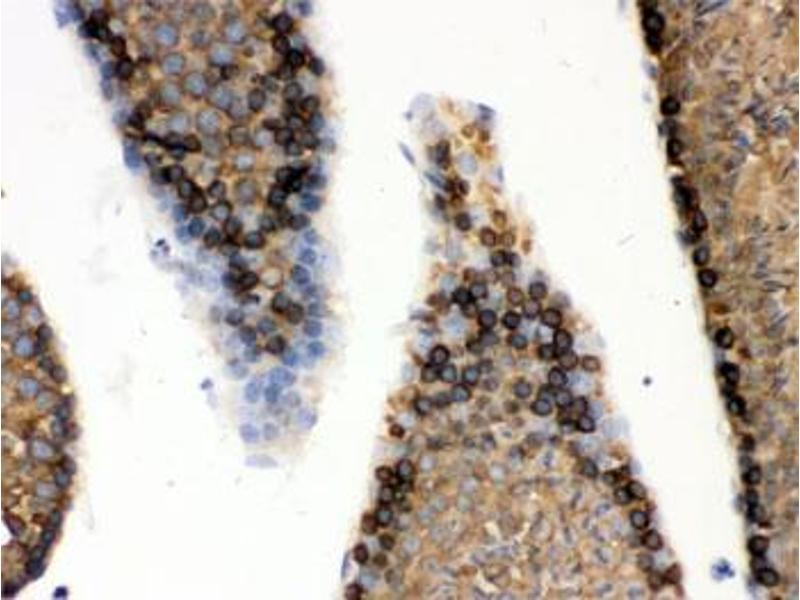 Image no. 1 for anti-Heat Shock 70kDa Protein 5 (Glucose-Regulated Protein, 78kDa) (HSPA5) antibody (ABIN4951256)