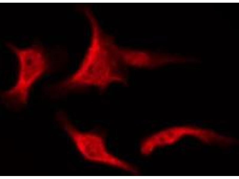 Immunofluorescence (fixed cells) (IF/ICC) image for anti-Protein Kinase C, zeta (PRKCZ) (pThr410) antibody (ABIN6256558)