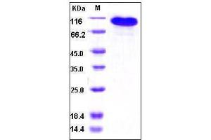 Image no. 1 for Basal Cell Adhesion Molecule (Lutheran Blood Group) (BCAM) (AA 1-547), (Extracellular Domain) protein (Fc Tag) (ABIN2002410)
