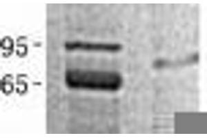 Image no. 1 for Peptidylprolyl Isomerase E (Cyclophilin E) (PPIE) (Transcript Variant 1) protein (His tag) (ABIN2712739)