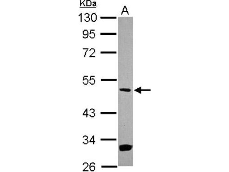 Western Blotting (WB) image for anti-MAP2K5 antibody (Mitogen-Activated Protein Kinase Kinase 5) (Center) (ABIN4333509)