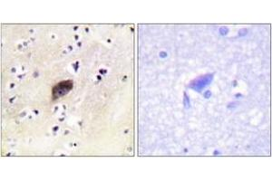 Image no. 2 for anti-P21-Activated Kinases 1/2/3 (PAK1/2/3) (AA 111-160), (pSer144) antibody (ABIN1531367)