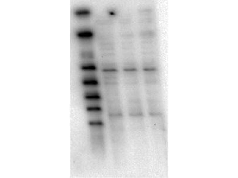 Western Blotting (WB) image for anti-AKT antibody (V-Akt Murine Thymoma Viral Oncogene Homolog 1) (ABIN4278989)