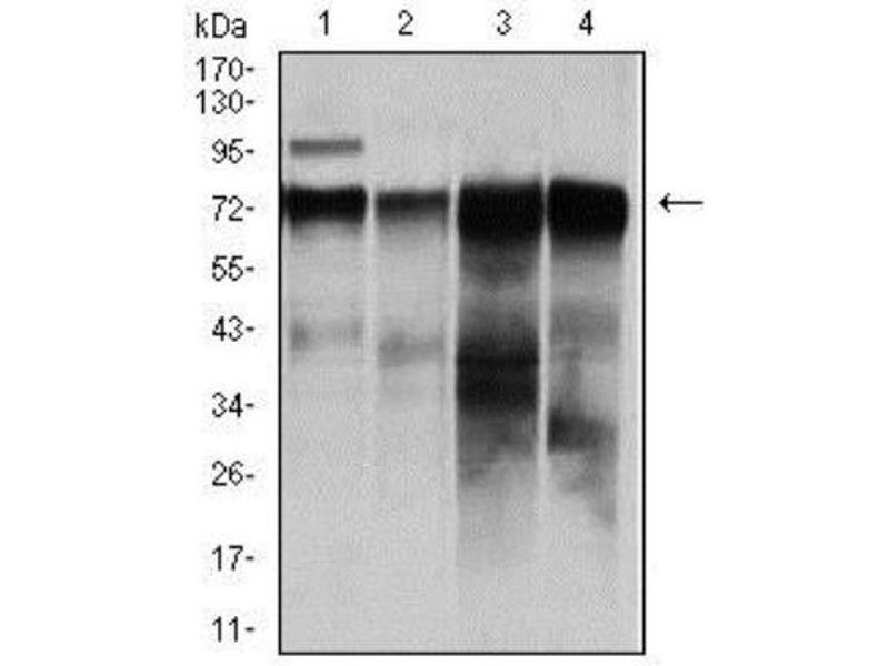 Western Blotting (WB) image for anti-V-Raf-1 Murine Leukemia Viral Oncogene Homolog 1 (RAF1) antibody (ABIN4349225)