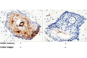 Image no. 3 for anti-S100 Calcium Binding Protein A7 (S100A7) (AA 1-101) antibody (ABIN1998327)
