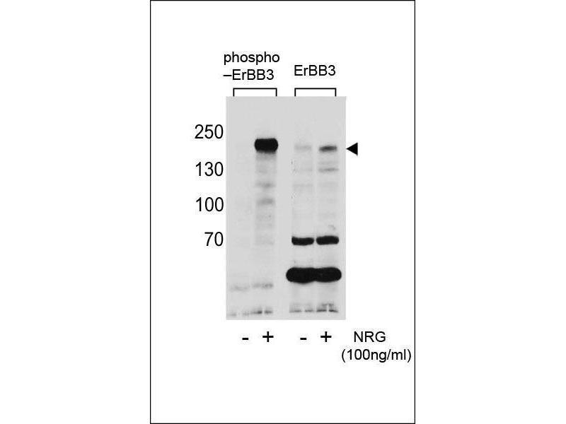 Western Blotting (WB) image for anti-ERBB3 Antikörper (V-Erb-B2 Erythroblastic Leukemia Viral Oncogene Homolog 3 (Avian)) (pTyr1289) (ABIN1881314)