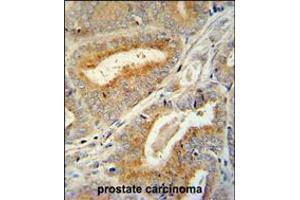 Image no. 2 for anti-BCL6 Corepressor-Like 1 (BCORL1) (AA 69-98), (N-Term) antibody (ABIN5535904)