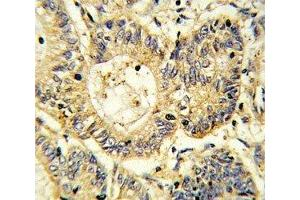 Immunohistochemistry (IHC) image for anti-Suppressor of Cytokine Signaling 1 (SOCS1) (AA 35-66) antibody (ABIN3029042)