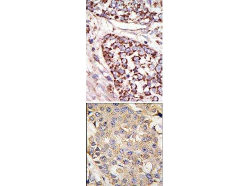 Immunohistochemistry (Paraffin-embedded Sections) (IHC (p)) image for anti-MAPK3 antibody (Mitogen-Activated Protein Kinase 3) (N-Term) (ABIN359630)