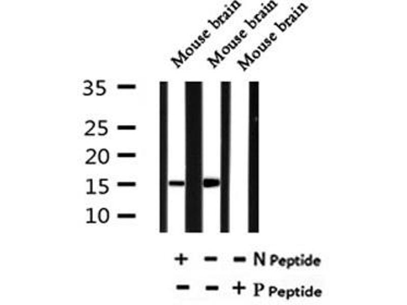 Image no. 4 for anti-Fatty Acid Binding Protein 7, Brain (FABP7) (pThr117) antibody (ABIN6269485)