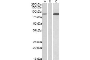 Western Blotting (WB) image for anti-STAT4 antibody (Signal Transducer and Activator of Transcription 4) (ABIN2503771)