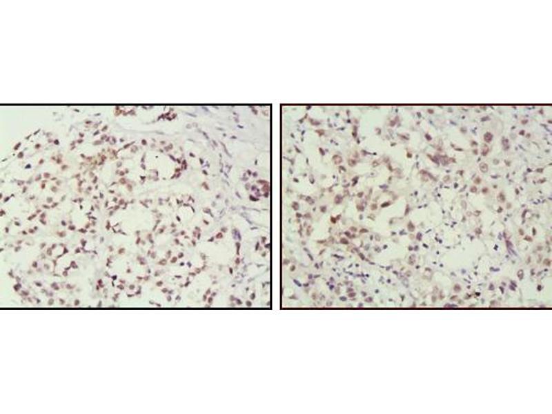 Immunohistochemistry (IHC) image for anti-MSH2 antibody (ABIN1724643)