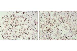 Image no. 2 for anti-Mismatch Repair Protein 2 (MSH2) antibody (ABIN1724643)