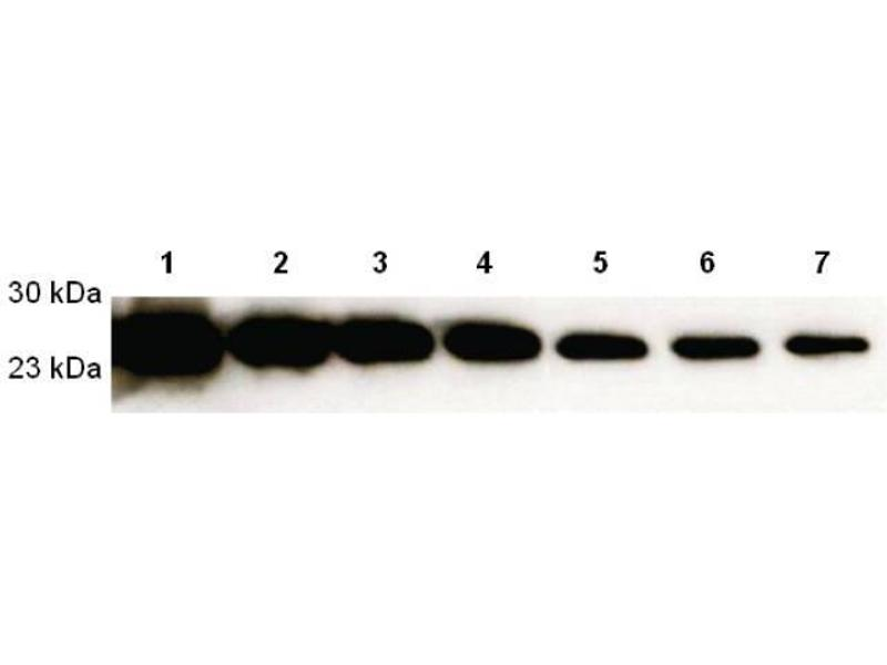 Western Blotting (WB) image for ECL substrate (Mark-It Glow liquid) (ABIN457495)