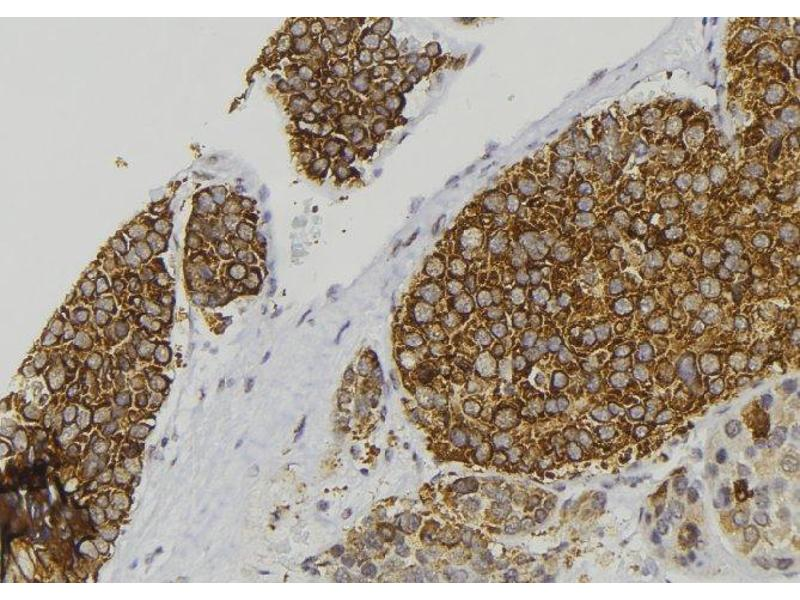 Immunohistochemistry (IHC) image for anti-Islet Amyloid Polypeptide (IAPP) antibody (ABIN6259921)