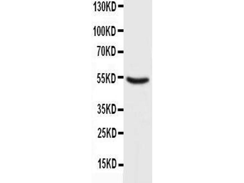 Western Blotting (WB) image for anti-Tumor Protein P53 (TP53) antibody (ABIN3043664)