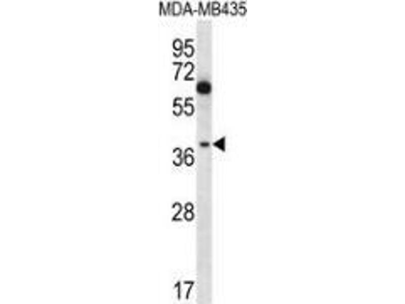 Western Blotting (WB) image for anti-Nuclear Factor of kappa Light Polypeptide Gene Enhancer in B-Cells Inhibitor-Like 1 (NFKBIL1) (AA 334-364), (C-Term) antibody (ABIN953696)