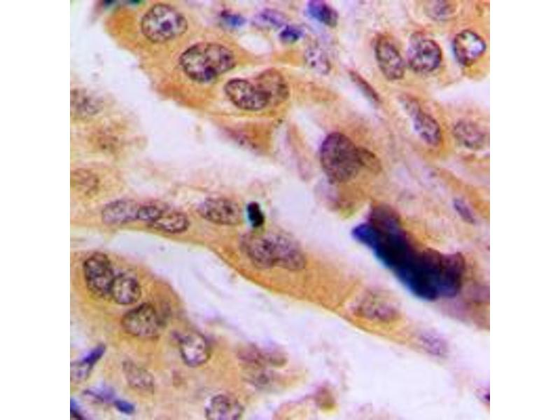 Immunohistochemistry (IHC) image for anti-Mitogen-Activated Protein Kinase 9 (MAPK9) (Center) antibody (ABIN2706429)